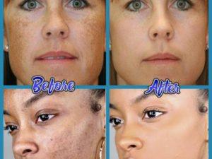 Perfect Skin Anti-Blemish Cream