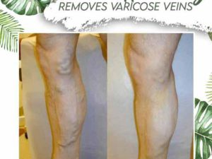 Venous Disorder Home Treatment Set